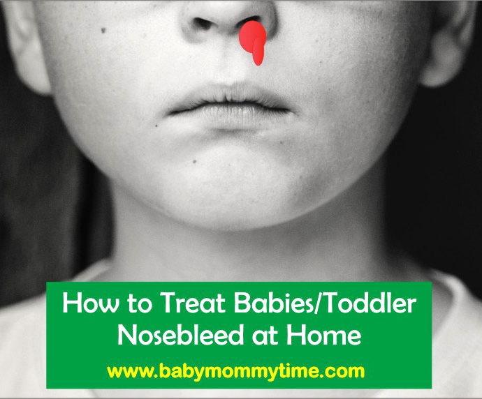 How to Treat : Toddler Nosebleed